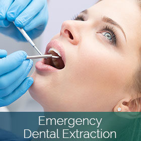 Emergency Dental Extraction