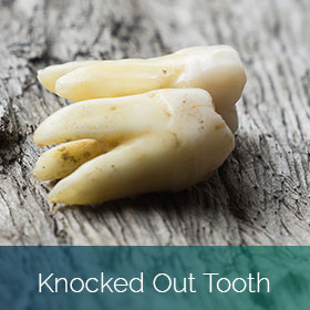 Knocked Out Tooth